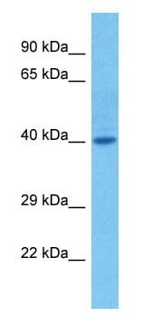 Western blot - Anti-RAX antibody (ab23340)