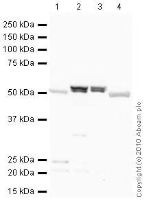 Western blot - Anti-ALDH1A1 antibody - Neuronal Marker (ab23375)