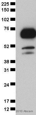 Western blot - Anti-TLS/FUS antibody (ab23439)