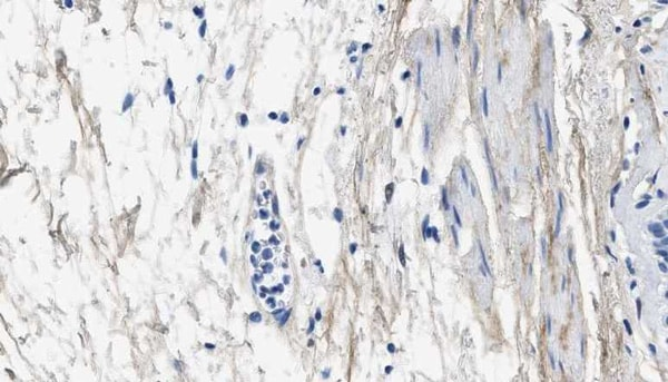 Immunohistochemistry (Formalin/PFA-fixed paraffin-embedded sections) - Anti-Collagen III antibody [1E7-D7/Col3] (ab23445)
