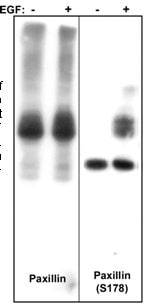Western blot - Anti-Paxillin antibody [M107] (ab23510)