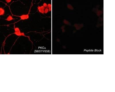 Immunocytochemistry - Anti-PKC alpha (phospho S657 + Y658) antibody (ab23513)