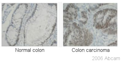 Immunohistochemistry (Formalin/PFA-fixed paraffin-embedded sections) - Anti-hnRNP K antibody [F45 P9 C7] (ab23644)