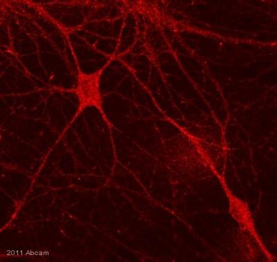 Immunocytochemistry/ Immunofluorescence - Anti-Optineurin antibody (ab23666)