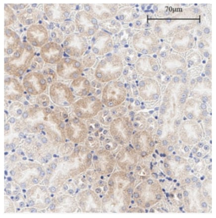 Immunohistochemistry (Formalin/PFA-fixed paraffin-embedded sections) - Anti-COX2 / Cyclooxygenase 2 antibody (ab23672)