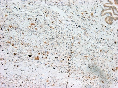 Immunohistochemistry (Formalin/PFA-fixed paraffin-embedded sections) - Anti-FOXO3A antibody (ab23683)