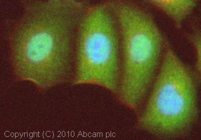 Immunocytochemistry/ Immunofluorescence - Anti-FOXO3A antibody (ab23683)