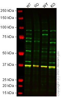 Western blot - Anti-FOXO3A antibody (ab23683)
