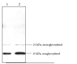 Western blot - Anti-DPL antibody (ab23701)