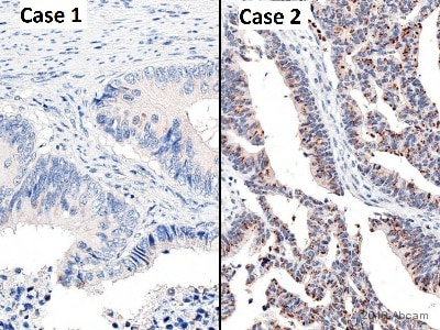Immunohistochemistry (Formalin/PFA-fixed paraffin-embedded sections) - Anti-PINK1 antibody (ab23707)
