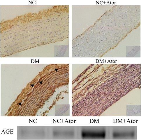 Immunohistochemistry (Formalin/PFA-fixed paraffin-embedded sections) - Anti-AGE antibody (ab23722)