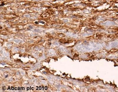 Immunohistochemistry (Formalin/PFA-fixed paraffin-embedded sections) - Anti-Fibronectin antibody (ab23750)
