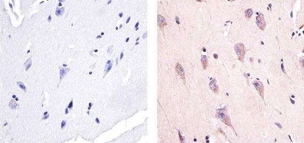 Immunohistochemistry (Formalin/PFA-fixed paraffin-embedded sections) - Anti-AMPK alpha 1 (phospho T183) + AMPK alpha 2 (phospho T172) antibody (ab23875)