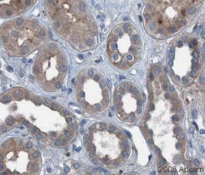 Immunohistochemistry (Formalin/PFA-fixed paraffin-embedded sections) - Anti-PDGF BB antibody (ab23914)