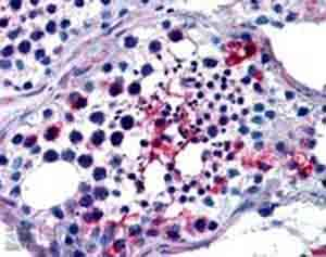 Immunohistochemistry (Formalin/PFA-fixed paraffin-embedded sections) - Anti-FHL1 antibody (ab23937)