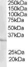 Western blot - Anti-ICER antibody (ab23940)
