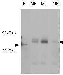 Western blot - Anti-RASSF1a antibody [3F3] (ab23950)