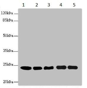 Western blot - Anti-Rab5b antibody (ab230000)
