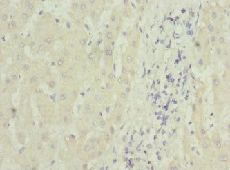 Immunohistochemistry (Formalin/PFA-fixed paraffin-embedded sections) - Anti-MTCH1/PSAP antibody (ab230006)