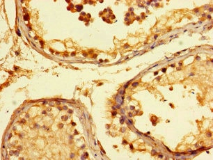 Immunohistochemistry (Formalin/PFA-fixed paraffin-embedded sections) - Anti-KANSL1 antibody (ab230008)