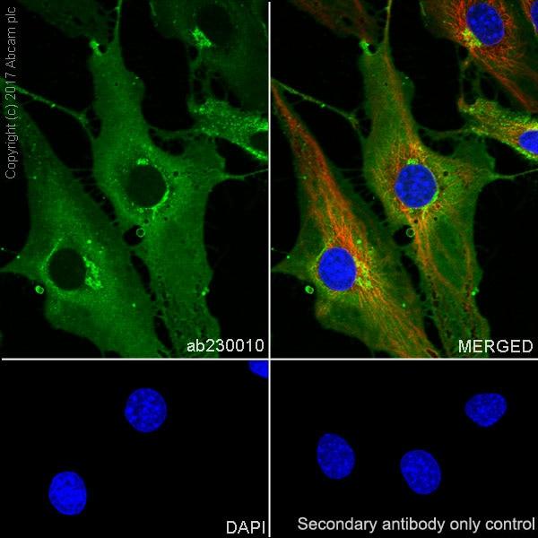 Immunocytochemistry/ Immunofluorescence - Anti-Thrombomodulin antibody [EPR18217-209] (ab230010)