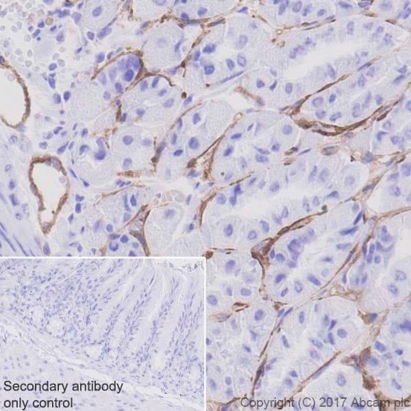 Immunohistochemistry (Formalin/PFA-fixed paraffin-embedded sections) - Anti-Thrombomodulin antibody [EPR18217-209] (ab230010)