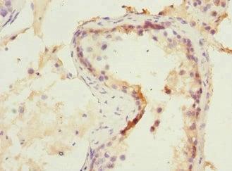 Immunohistochemistry (Formalin/PFA-fixed paraffin-embedded sections) - Anti-NMT2 antibody (ab230016)