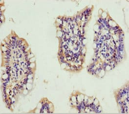 Immunohistochemistry (Formalin/PFA-fixed paraffin-embedded sections) - Anti-GNA15 antibody (ab230021)