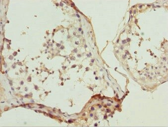 Immunohistochemistry (Formalin/PFA-fixed paraffin-embedded sections) - Anti-ULK4 antibody (ab230023)