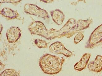 Immunohistochemistry (Formalin/PFA-fixed paraffin-embedded sections) - Anti-Proteasome 20S beta 3 antibody (ab230024)