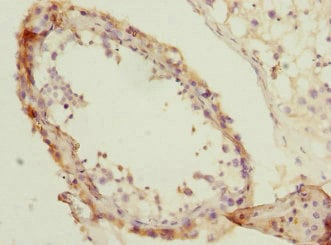 Immunohistochemistry (Formalin/PFA-fixed paraffin-embedded sections) - Anti-NMT2 antibody (ab230028)