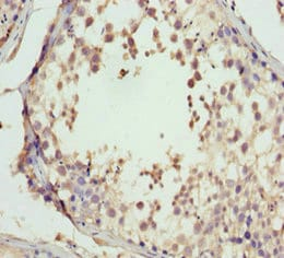 Immunohistochemistry (Formalin/PFA-fixed paraffin-embedded sections) - Anti-GNS antibody (ab230037)