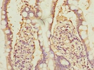 Immunohistochemistry (Formalin/PFA-fixed paraffin-embedded sections) - Anti-NFYB/CBF-B antibody (ab230040)