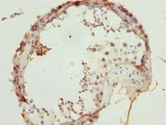 Immunohistochemistry (Formalin/PFA-fixed paraffin-embedded sections) - Anti-ULK4 antibody (ab230041)