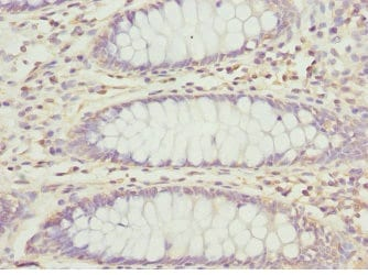 Immunohistochemistry (Formalin/PFA-fixed paraffin-embedded sections) - Anti-TERP antibody (ab230046)