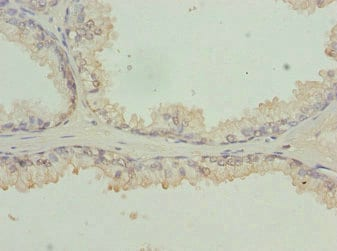 Immunohistochemistry (Formalin/PFA-fixed paraffin-embedded sections) - Anti-RFPL2 antibody (ab230087)