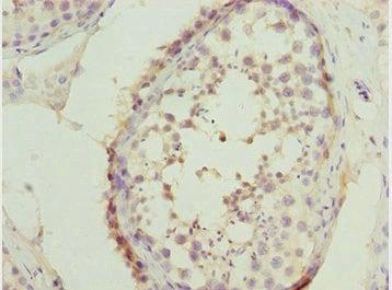 Immunohistochemistry (Formalin/PFA-fixed paraffin-embedded sections) - Anti-SYCE1 antibody (ab230095)