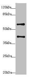 Western blot - Anti-SYCE1 antibody (ab230095)