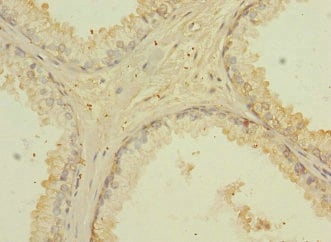 Immunohistochemistry (Formalin/PFA-fixed paraffin-embedded sections) - Anti-CD276 antibody (ab230102)