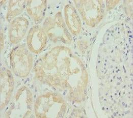 Immunohistochemistry (Formalin/PFA-fixed paraffin-embedded sections) - Anti-ZIP-4 antibody (ab230121)