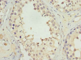 Immunohistochemistry (Formalin/PFA-fixed paraffin-embedded sections) - Anti-UGT3A2 antibody (ab230122)