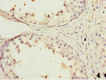 Immunohistochemistry (Formalin/PFA-fixed paraffin-embedded sections) - Anti-KBTBD7 antibody (ab230126)