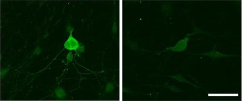 Immunocytochemistry/ Immunofluorescence - Anti-GABA B Receptor 2/GABBR2 antibody [EP2411Y] - BSA and Azide free (ab230136)