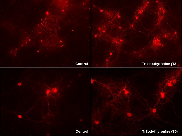 Immunocytochemistry/ Immunofluorescence - Anti-Neurogranin antibody [EPR21152] - BSA and Azide free (ab230154)