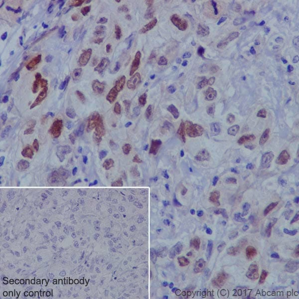Immunohistochemistry (Formalin/PFA-fixed paraffin-embedded sections) - Anti-FOXC1 antibody [EPR20685] - BSA and Azide free (ab230159)
