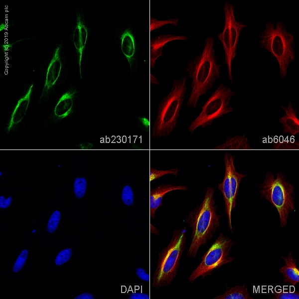 Immunocytochemistry/ Immunofluorescence - Anti-Vimentin antibody [LN-6] (ab230171)
