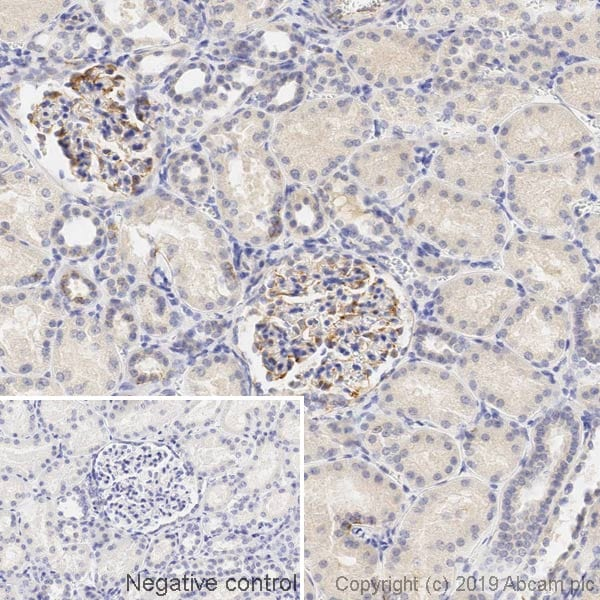 Immunohistochemistry (Formalin/PFA-fixed paraffin-embedded sections) - Anti-Vimentin antibody [LN-6] (ab230171)