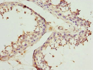 Immunohistochemistry (Formalin/PFA-fixed paraffin-embedded sections) - Anti-BBS2 antibody (ab230185)