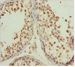 Immunohistochemistry (Formalin/PFA-fixed paraffin-embedded sections) - Anti-L2HGDH antibody (ab230194)