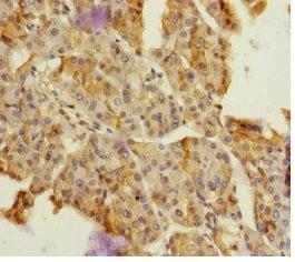 Immunohistochemistry (Formalin/PFA-fixed paraffin-embedded sections) - Anti-DPT/TRAMP antibody (ab230195)